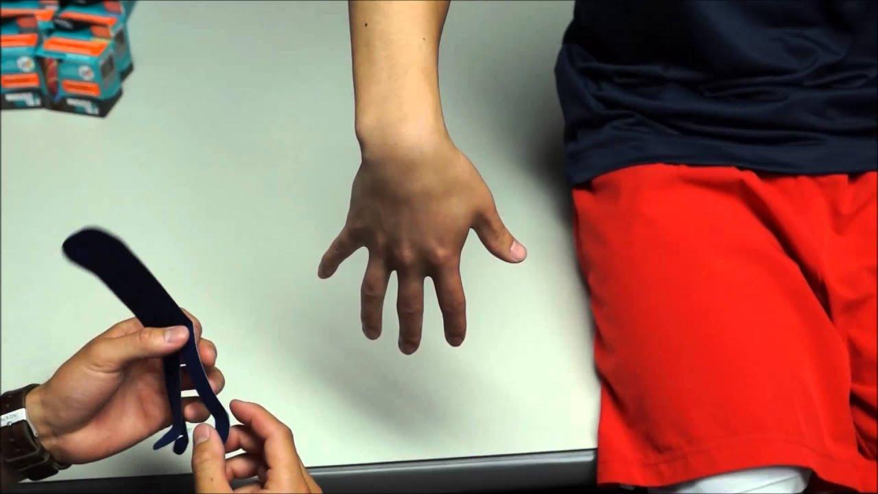 hogyan kezeljük a könyök ízületi sprain kezelését