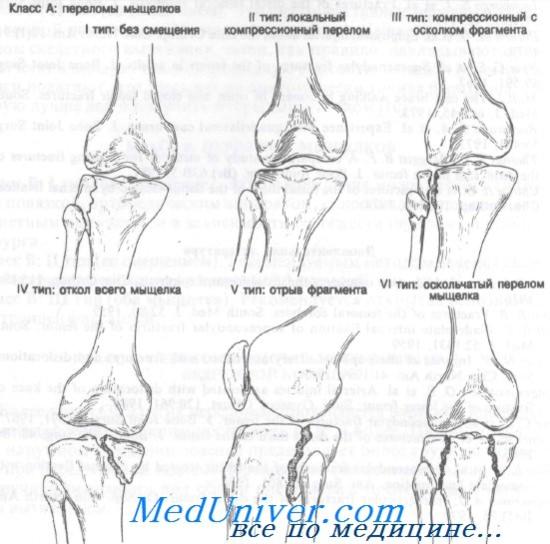 súlyos fájdalom a bokaízületben sérülés nélkül