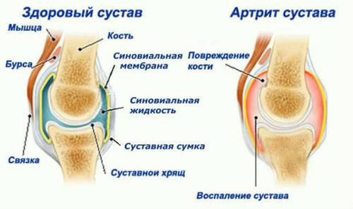 Mi a jobb piascledine vagy arthra