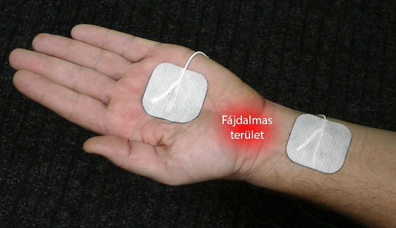 szteroidok ízületi fájdalmak ízületi gél 6000000 dalton