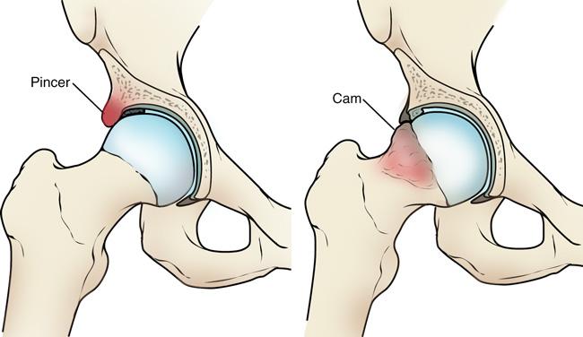 csípőfájdalom egy gyermekben gyógymódok repesztik a térdét