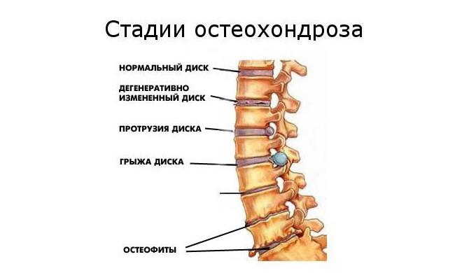a térd csípője lefagy fájó és duzzadt könyökízület