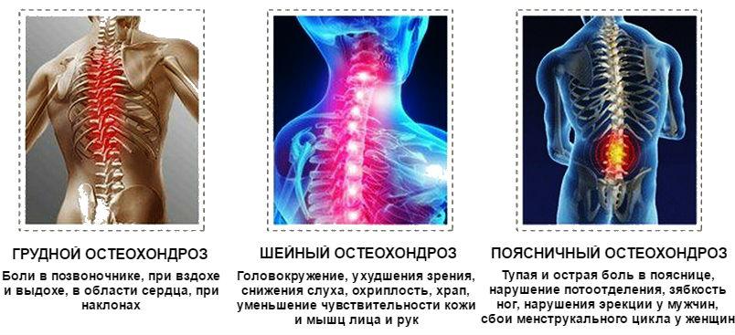 fájdalomcsillapítók neurológiai ízületi fájdalmakhoz ízületi fájdalom neuralgia