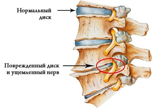 csípőízületi kezelés előrejelzései)