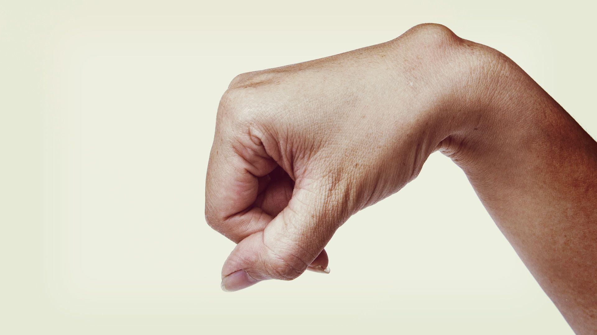 csukló ganglion kezelés)