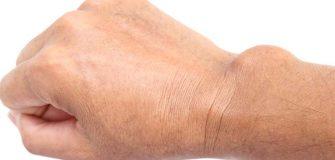 hogyan lehet kezelni a nagy lábujj ízületének gyulladását bokaízület helyreállítása