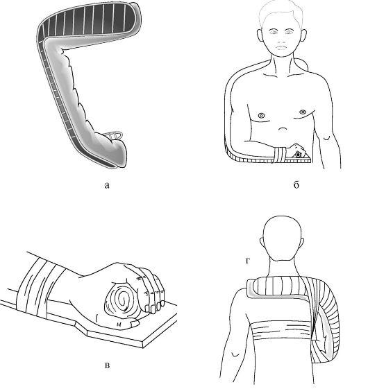 a vállízület szokásos elmozdulása sérülés kenőcs segít visszaállítani a porcot