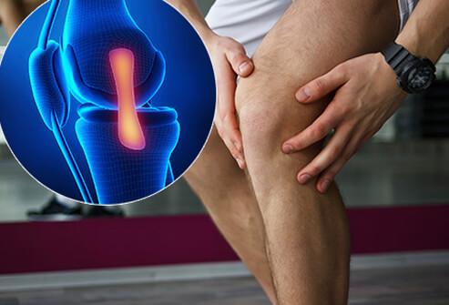 a térdízület fájni kezdett térdízület ízületi gyulladása hogyan gyógyítható