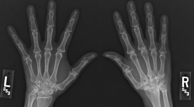 A reumatoid artritisz gyógyszeres kezelése - EgészségKalauz