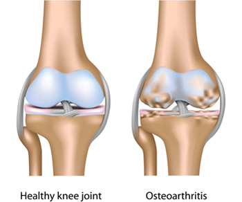 térdízület első fokú osteoarthrosis)