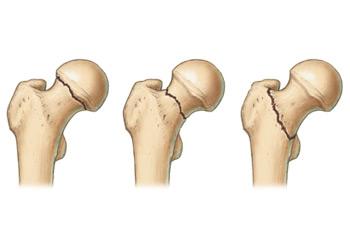 gyógyszerek csontritkulás és osteoarthrosis kezelésére fájdalom a csípőízületekben és a sacrumban