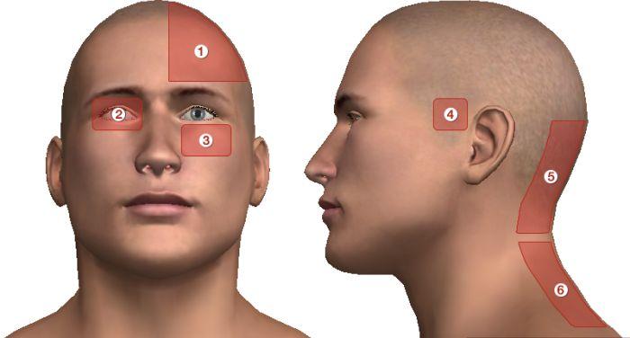 Sokszor fáj a feje? Ezek állhatnak a háttérben