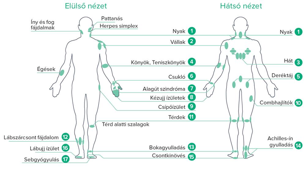 lézerkészülék ízületek ízületi gyulladásának kezelésére