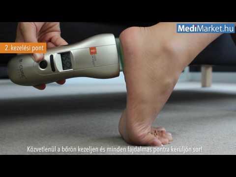 boka artrózis lézeres kezelése peptidek a szalagok és ízületek helyreállításához