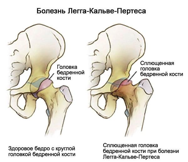 a térd bilaterális deformáló artrózisa