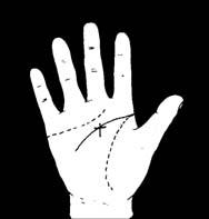 Heberden-szindróma: a kézujjak kisizületi kopása   Magyar Nemzet