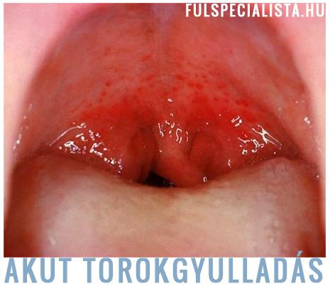 bakteriális torokgyulladás kezelése házilag)