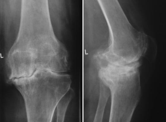 Diagnostic Imaging: Orthopaedics