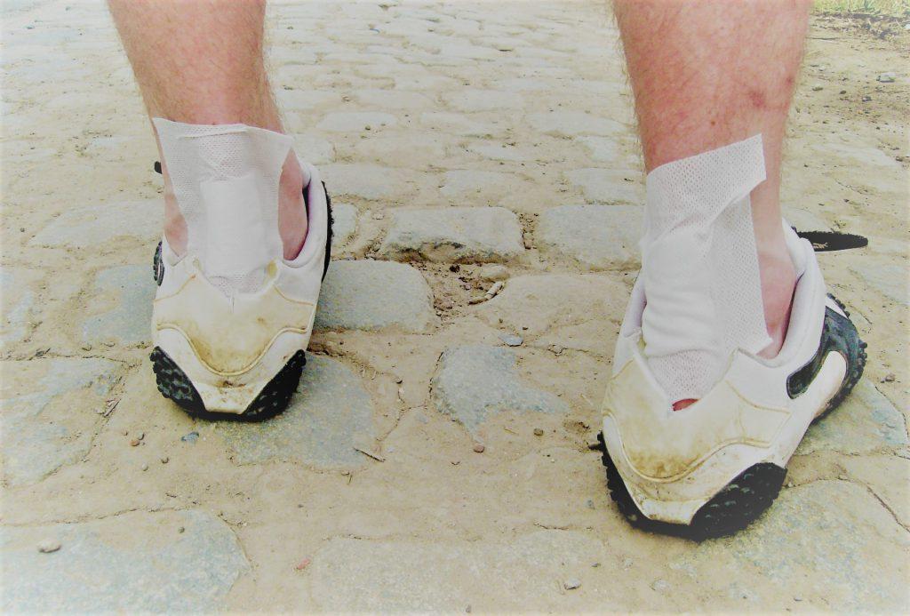 lábfájdalom ízületek sarka)