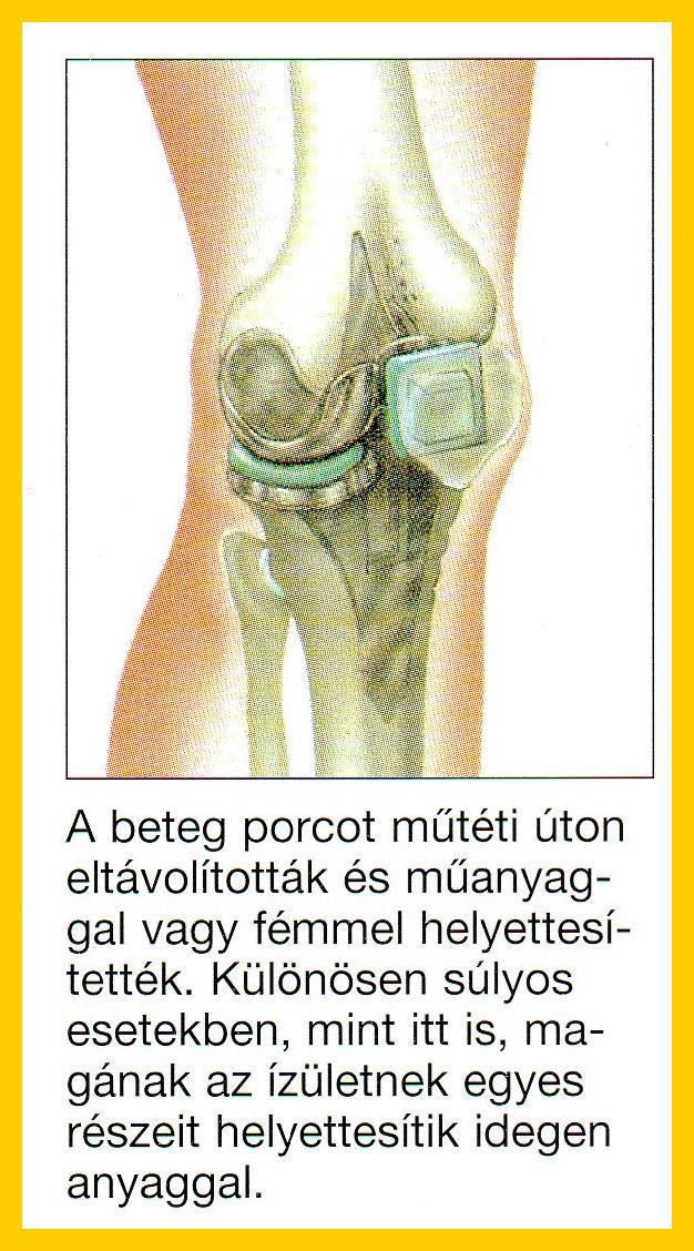 csontok és ízületek degeneratív degeneratív betegségei)