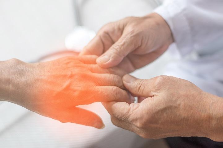 rheumatoid arthritis ujjaival történő kezelés