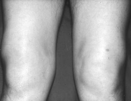 fájdalomcsillapítók térdízület-tabletták artrózisához)