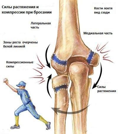 fájdalomcsillapítás a könyökízületekben)