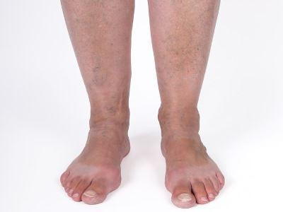 futó fájdalmak a bokán)