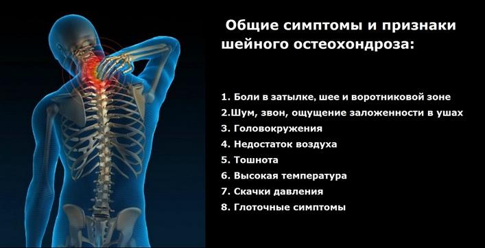 gél és kenőcs az oszteokondrozis kezelésére)