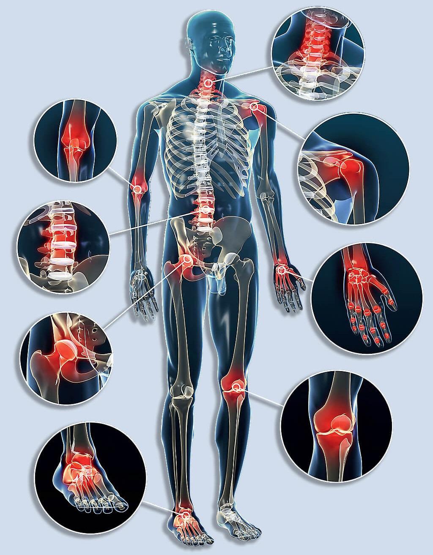 gyógyítja a csont- és ízületi fájdalmakat)