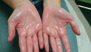 hematoma térdfájdalom)