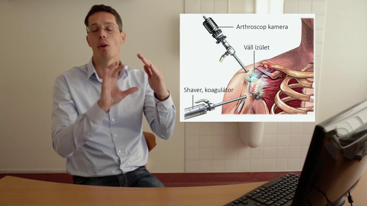 A vállízület artroszkópiája: a vállfájdalom minimális invazív kezelése