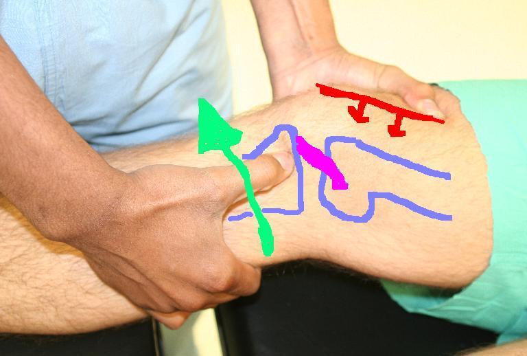 hogyan ne kapjunk csípő sérülést