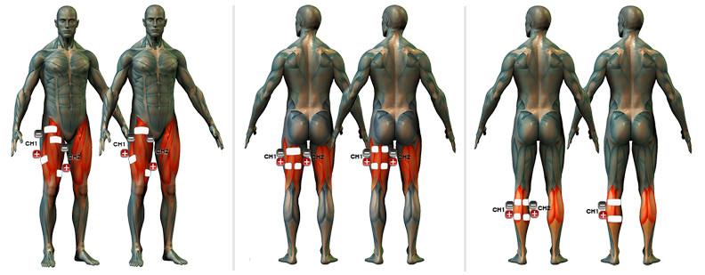 izom- és ízületi fájdalomcsíra térdízület artrózisa 2 fokos előrejelzés