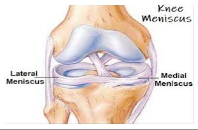 enyhítse a duzzanat a térd artrózisával