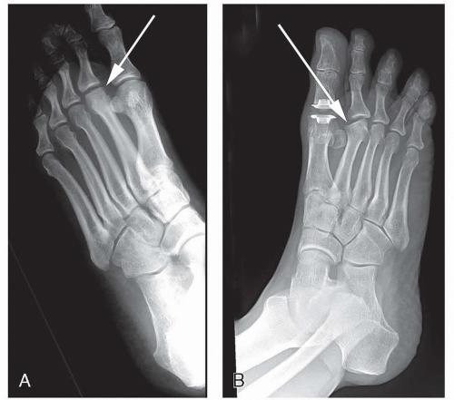 Lábközéptáji fájdalom (metatarsalgia) kezelése lökéshullámmal