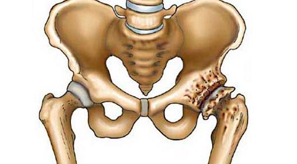 Ortopédia jegyzet | buggarage.hu