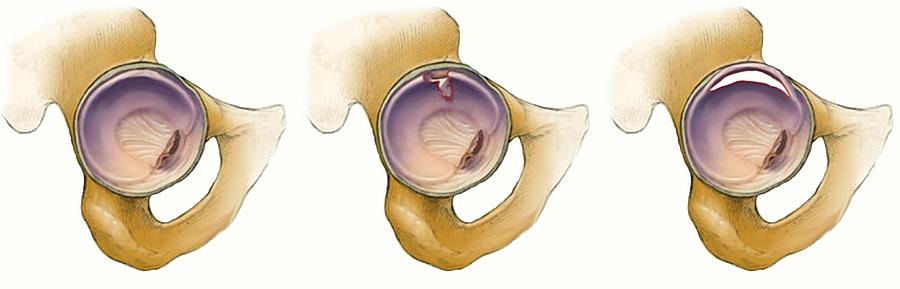 mi a csípőízületek artrózisa)