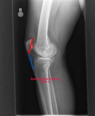 mi a patella arthritis búza kezelés artrózis esetén