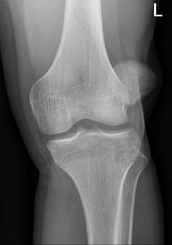 mi a patella arthritis izom- és ízületi fájdalom éjjel