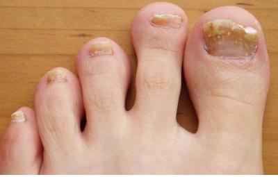 mi fáj a lábujj ízülete