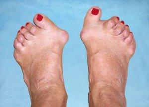 mi köze a láb ízületeinek gyulladásáig szezám olaj ízületi kezelés