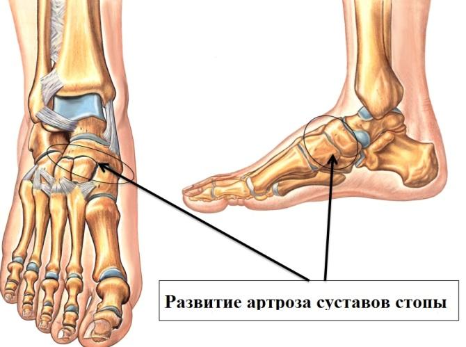 mit inni a fájdalom a lábak ízületeiben)