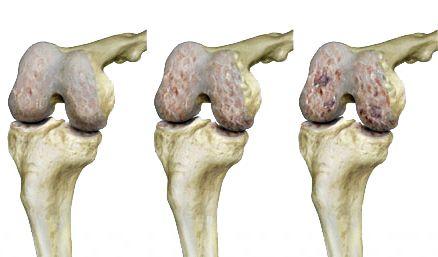hogyan lehet enyhíteni otthon az ízületi fájdalmakat állatgyógyászati kenőcs ízületekre
