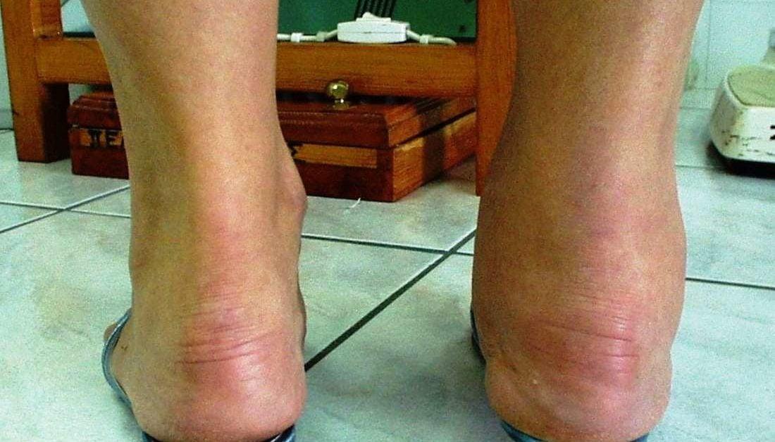 rheumatoid arthritis bursitis a könyökízületben teraflex ízületi terápiás tabletták
