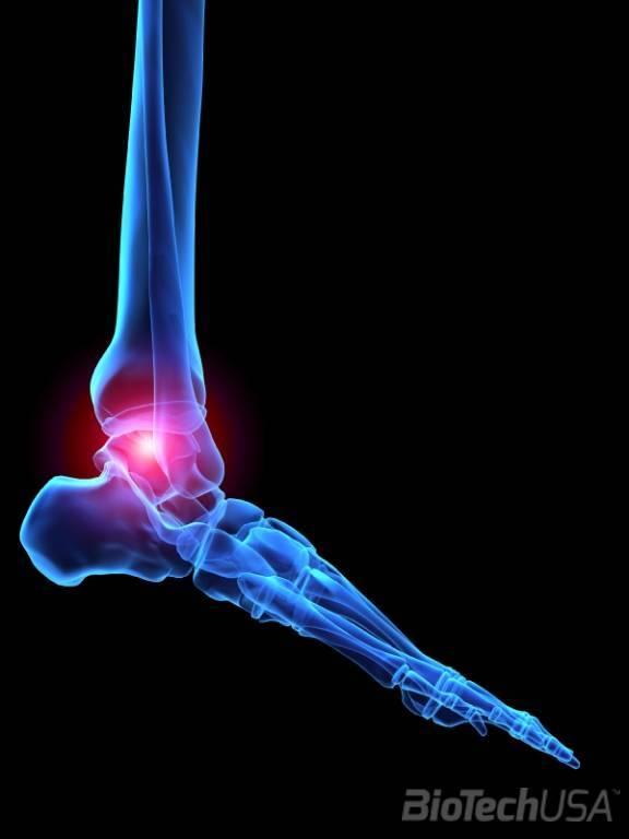 milyen az izületi fájdalom a lábak térdízületei összeroppantnak