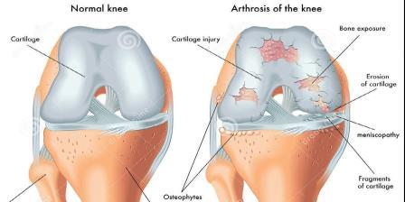 artrózis és képkezelés közös kezelési terv