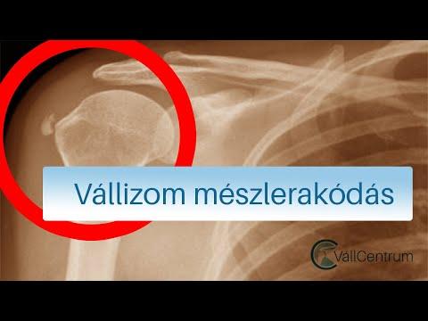 vállízület kezelése acromioclavicularis artrosisban hogyan lehet kezelni az akut artrózist