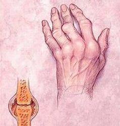 ízületek fájnak a menstruáció előtt)