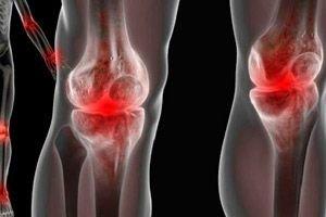 együttes kezelés decemberben csontritkulás esetén